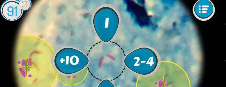 TuberSpot videojuego para diagnosticar Tuberculosis